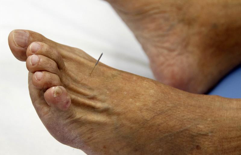 Beneficiários do ICS contam com serviço de acupuntura no Centro de Saúde do Rebouças, sem custo adicional. Curitiba, 12/02/2020. Foto: Lucilia Guimarães/SMCS